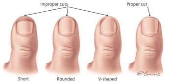 Proper way to cut toenails